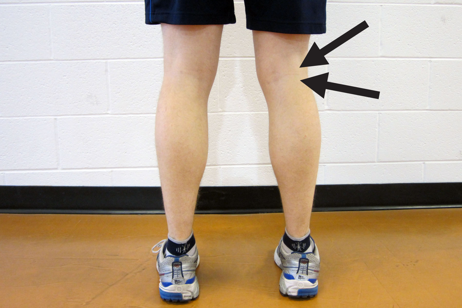 How To Get Rid Of Baker S Cyst Behind Knee Naturally