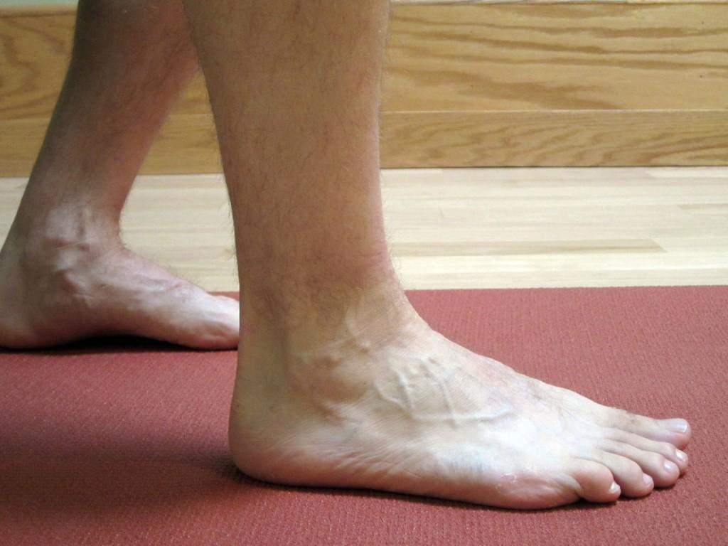 AnkleSprain_1