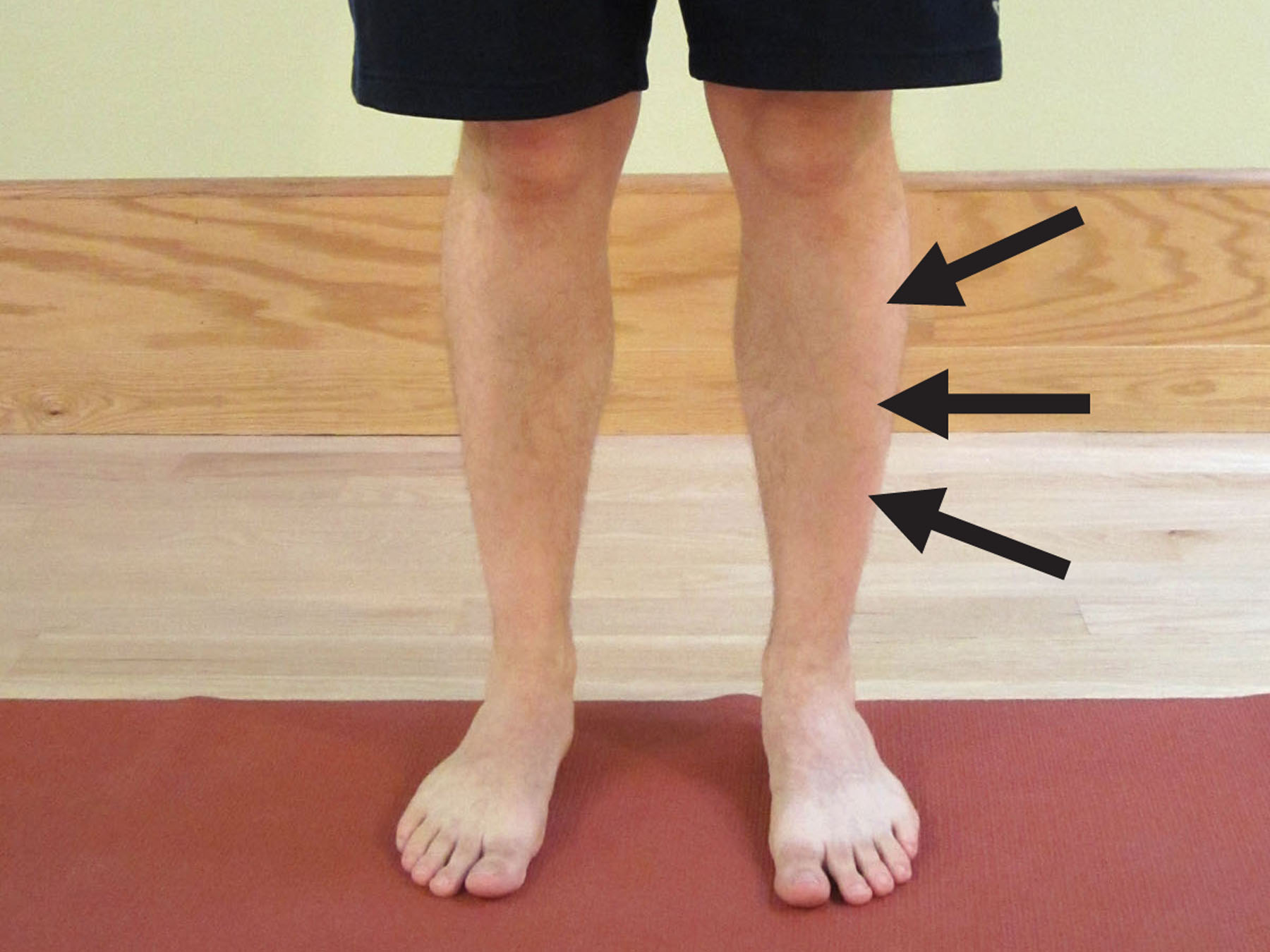 how to prevent shin splints | the physical therapy advisor