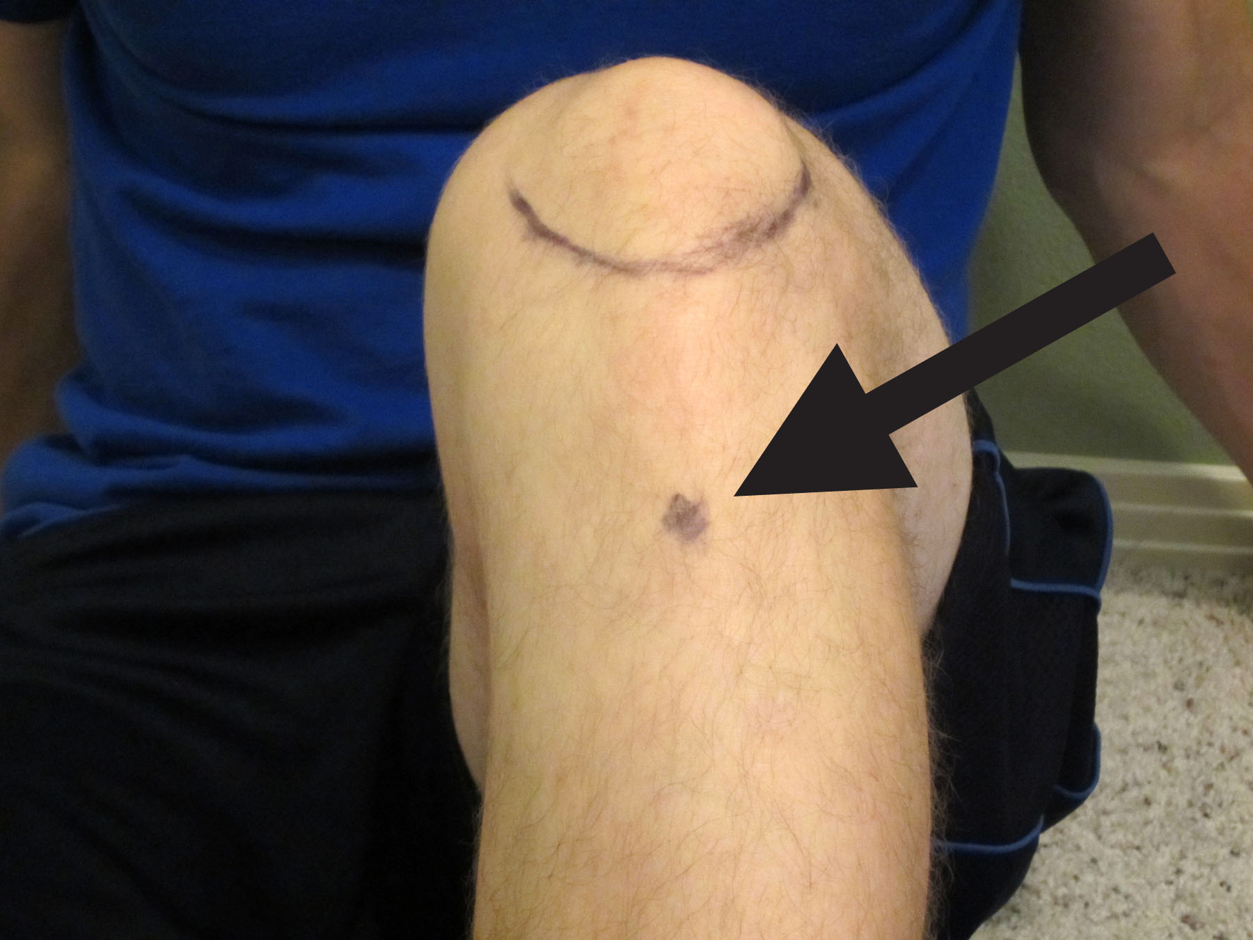Q & A: My Top 5 Tips on How to Self-Treat Osgood-Schlatter