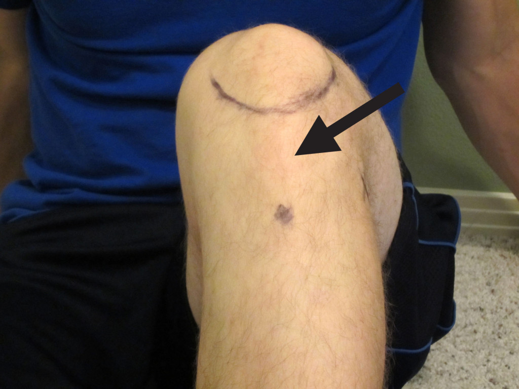 How To Self Treat Patellar Tendon Pain With A Mobility Band The